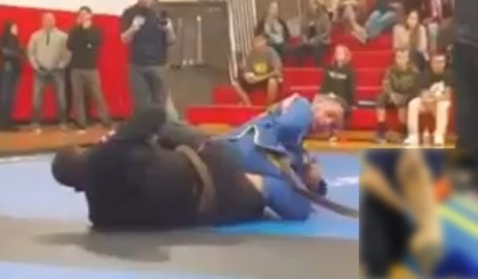 Horribly Broken Foot with a Straight FootLock
