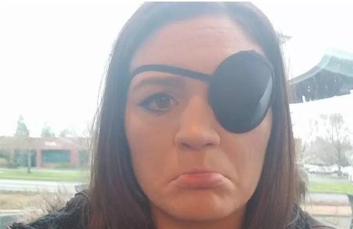 Anna Dempster eye injury