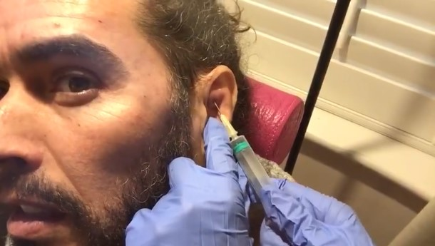 Russell Brand Cauliflower Ear drain
