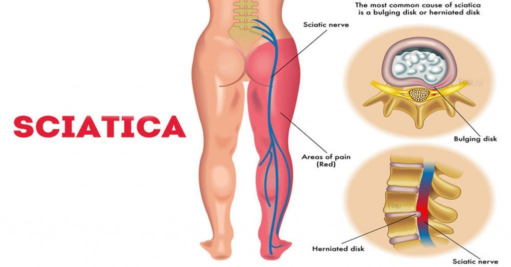 BJJ Lower Back pain Sciatica stretch