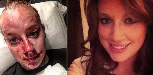 Screenshot 241 533x261 - Police Officer Kristen Richmond Survived an Attack Thanks to BJJ & KM
