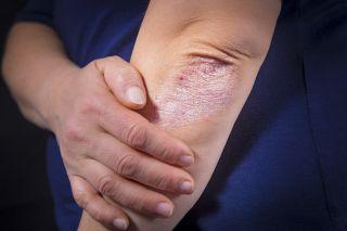 FWj5xNEpRgCVtVMu9JHJsP 320 80 - Common BJJ Skin Infections: Psoriasis, Impetigo and Herpes