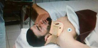 Horribel grappling INjury Paralyzes Fighter