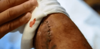 BJJ Staph Infection : Everything about