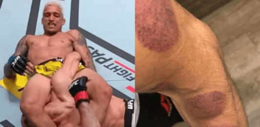 Tony Ferguson Shows His Injured Elbow and Talks About The Fight