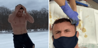 UFC Fighter Jumps Into the Frozen Lake and Ends up in Hospital With Bloody Head