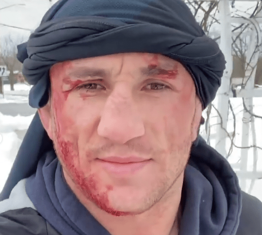 Screenshot 68 - (VIDEO) UFC Fighter Jumps Into the Frozen Lake and Ends up in Hospital With Bloody Head